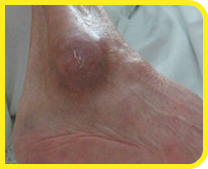 Estudo de Caso de Úlceras de Pressão – Evolução com base na localização Case Study of Pressure Ulcers – Evolution based on location